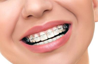 Photo of تقويم الأسنان ..أنواعه ومدته ومدى نجاحه