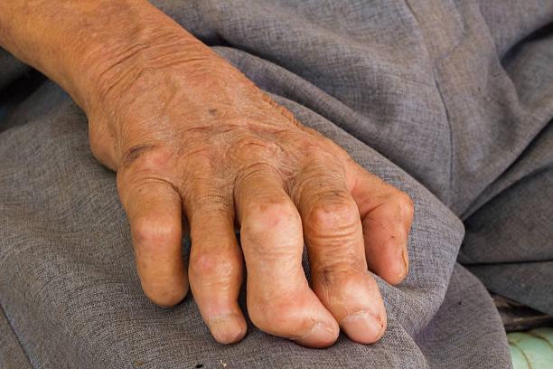 Photo of مرض الجذام