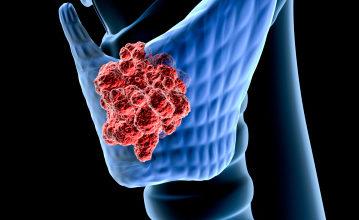Photo of سرطان الغدد الليمفاوية
