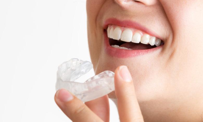 Photo of تبييض الاسنان