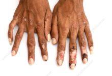 Photo of الجذام leprosy