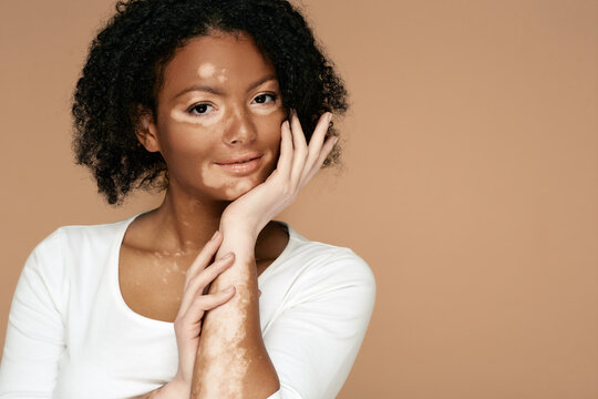 البهاق vitiligo