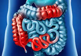التهاب الأمعاء مرض كرون