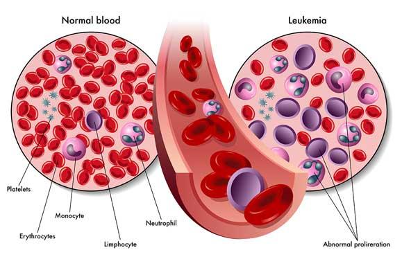 سرطان الدم ( leukemia)